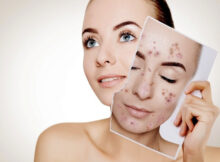Clear Acne Scars